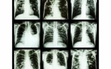 Překvapivé souvislosti mezi rostlinami a tuberkulózou